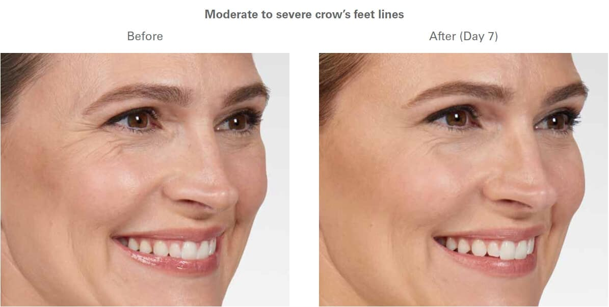 , Botox Cosmetic